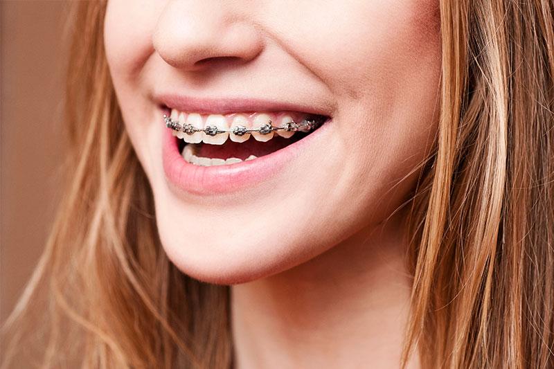 Orthodontics in Siren