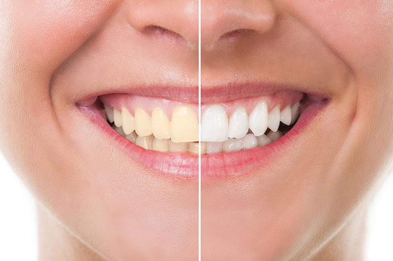 Teeth Whitening in Siren
